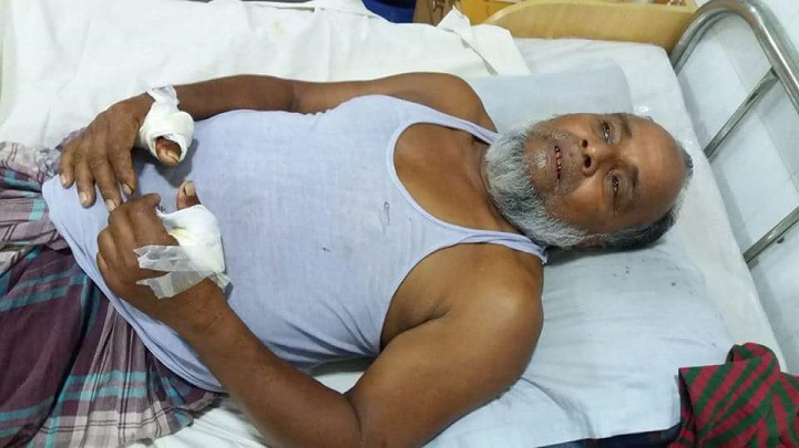 ইউপি-সদস্যকে-কুপিয়ে-আহত-Mymensingh chopped UP member injured