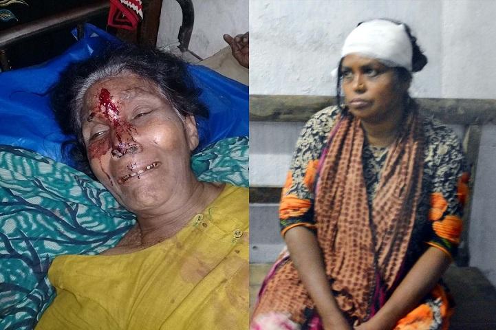 বৃদ্ধার-মাথা-ফাটিয়ে-দিলো-Jubo League leader Sirajdee broke the head of 65 years old