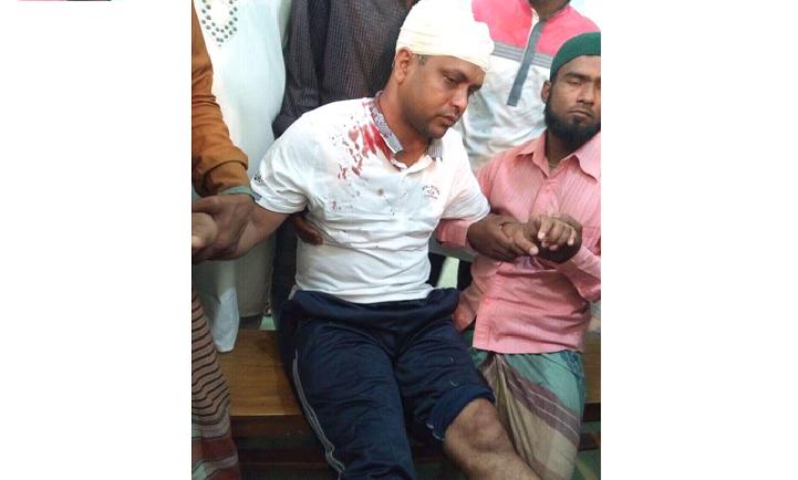 সন্ত্রাসী-হামলা-Terrorist attack on the mayor of Shariatpur Municipality