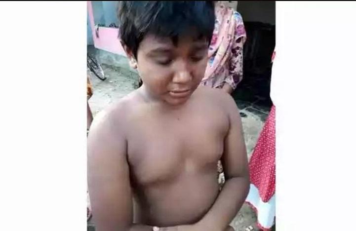 হাত-ভেঙ্গে-দিল-শিক্ষক-Teachers broke the hands of the 3rd grade student