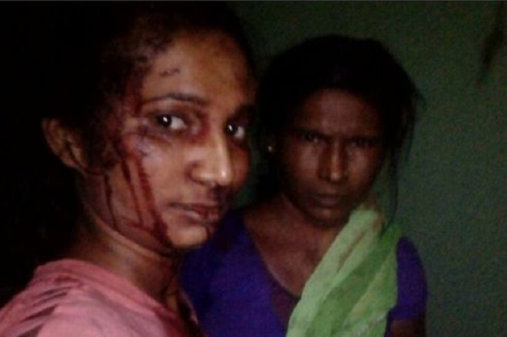 Rupali-বাঘের-সঙ্গে-লড়াই-After fighting with the tiger, bloody face in Selfi!