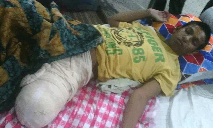 হাতুড়ে-চিকিৎসকের-খপ্পরে-Habibullah lost his foot after being hit by a doctor in Nandail