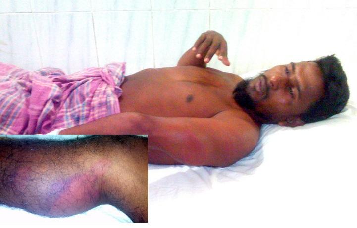 কলাপাড়ায় ঠিকাদারকে পিটিয়ে আহত করেছে দুর্বৃত্তরা