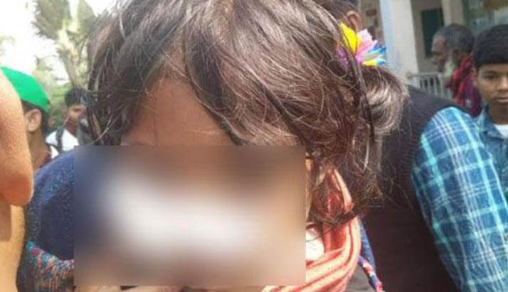 কক্সবাজারে শিশুছাত্রীকে 'ঘুষি' মেরে নাক ফাটালেন শিক্ষক
